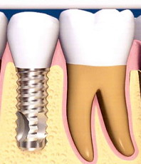 Visa tiesa apie implantus