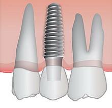 Kuo geri dantų implantai?