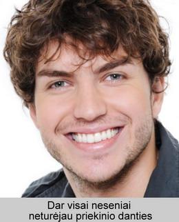 Priežastys, kodėl jums gali būti reikalingas dantų protezavimas