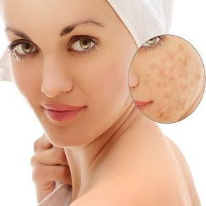 Lazerių panaudojimas dermatologijos klinikoje