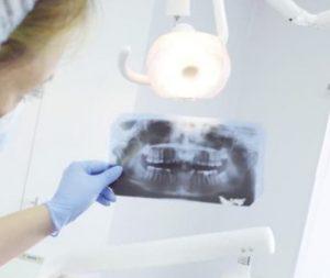 Faktai apie implantus