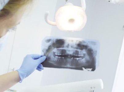 Svarbiausi faktai apie dantų implantaciją
