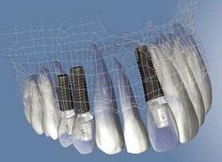 dantu implantau privalumai