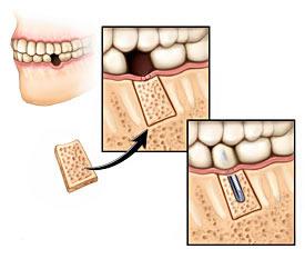Kaulo priauginimas prieš dantų implantavimą