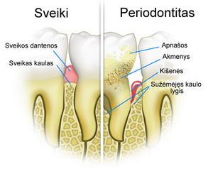 Trumpai apie periodontitą