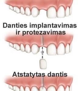Danties implantas – geriausias sprendimas netekus danties